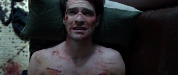 Matt Murdock's Scars on Netflix