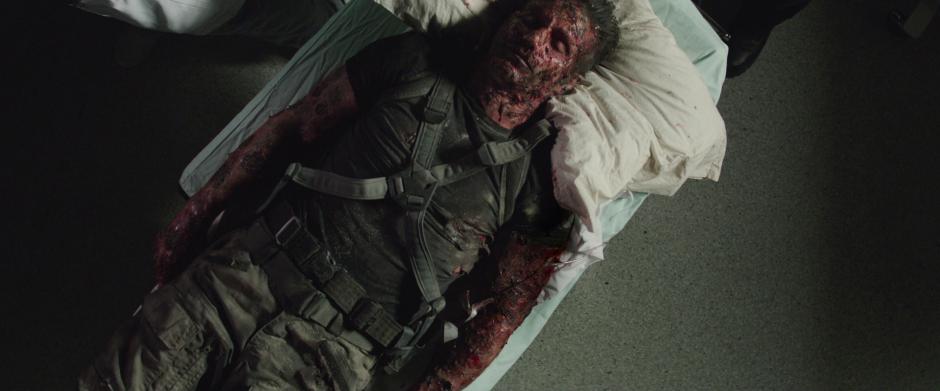 Brock Rumlow Burned Captain America The Winter Soldier